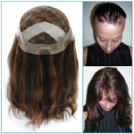 Penny - Invisible Hair Replacement System by Dawn Harrison - SPECIAL ORDER - New Concepts - PROFESSIONAL SPECIALTY PRODUCT
